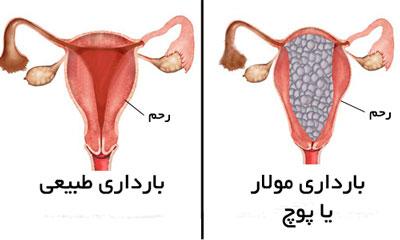 بارداری پوچ