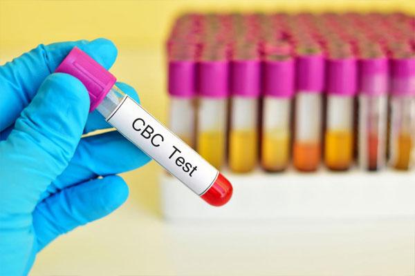 آزمایش پلاکت خون در بارداری چیست؟