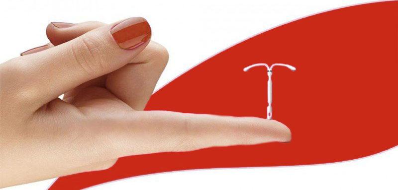 نشانه ها و علائم حاملگی با دستگاه ای یو دی
